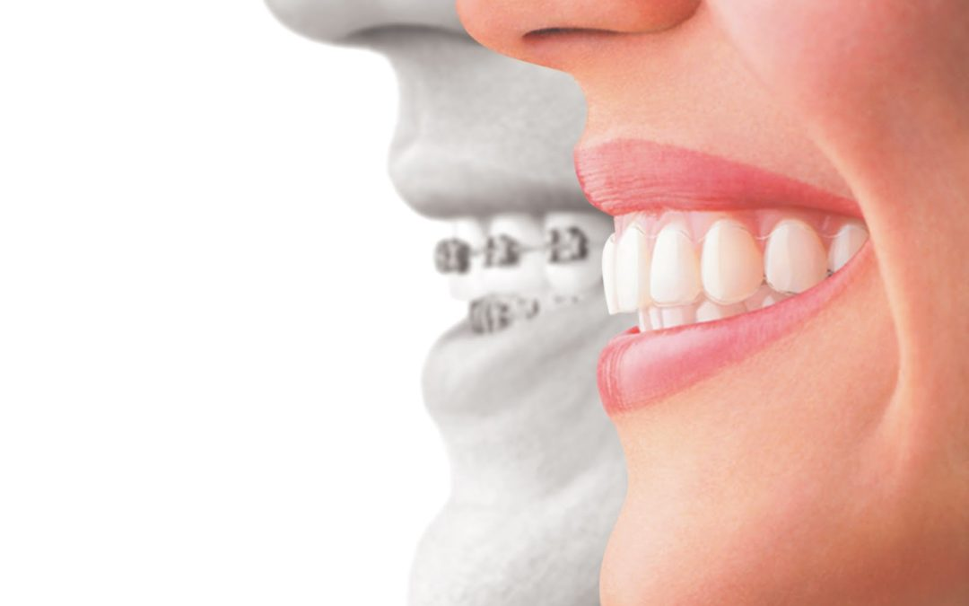 What's the Difference between Braces, Functional Appliances and Retainers?