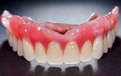 Dentures vs Implants: Pros and Cons